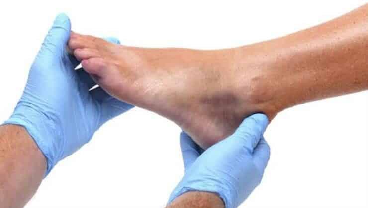 ayak bileği yaralanmaları neden olur? tedavi yöntemleri nelerdir?
