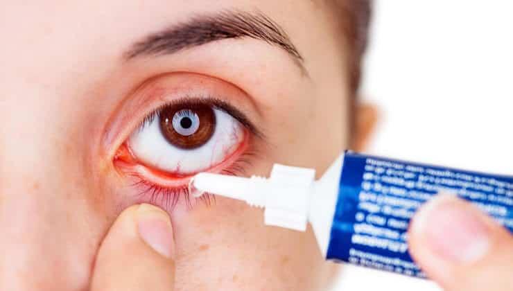 göz nezlesi tedavisi