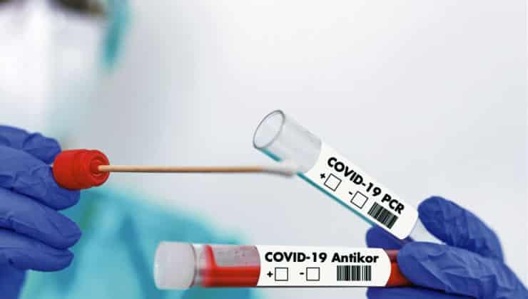 pcr ve antikor testi farkı