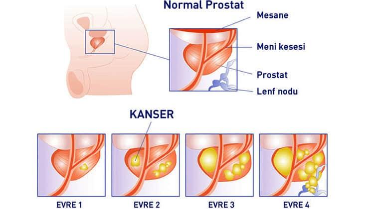 prostat kanseri evreleri