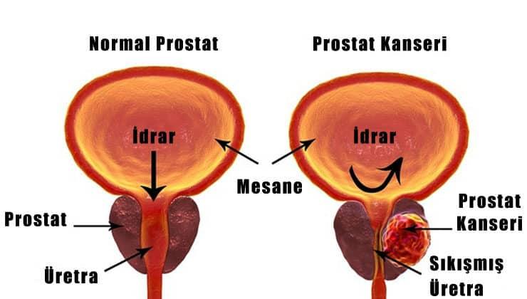 prostat kanseri nasıl oluşur?